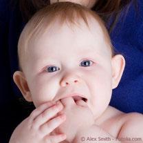 Berlin Homöopathie Zahnung Zahnschmerzen Baby