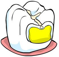 Fissurenversiegelung: Kariesschutz für alle Backenzähne (© wigerio)