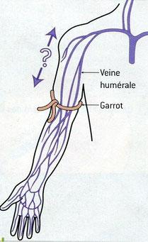 LeDeux possibilités de circulation du sang dans le bras. Source: SVT, Nathan, 2006.