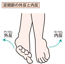 足指痛・外反母趾、カカト痛