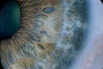 Qu'est-ce que l'iridologie