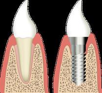 Имплантат резцового зуба с установленной коронкой