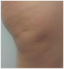 Unser Ergebnis nach der Behandlung der Cellulite mit Radiofrequenz