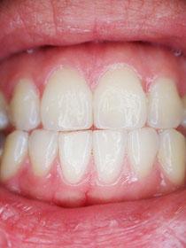 Mund, Zähne aufeinandergebissen zu sehen, Lippen geöffnet, schöne Zähne