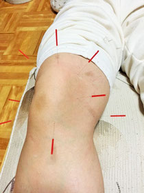 小牧 鍼灸 鍼治療 ひざ 痛み 関節痛 マラソン