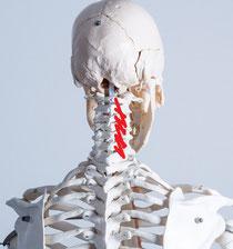 肩こりで首がまわらなくなる原因