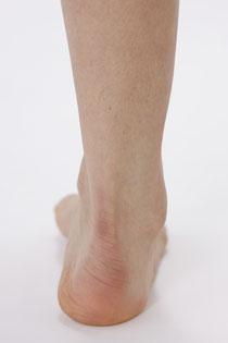 写真2)回外(かいがい)小指側に体重がかかった姿勢時の右足