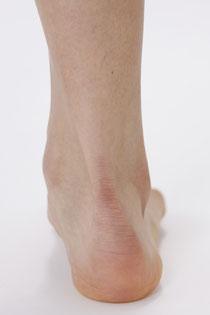 写真2)回内(かいない)親指側に体重がかかった姿勢時の右足