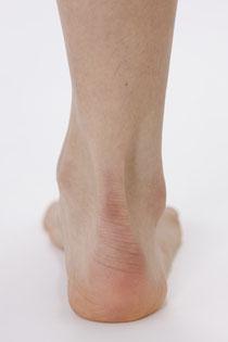 正常な着地時の右足、正常な立ち姿勢時の右足