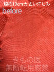 着物の脇にできた10cm大の比較的古い汗じみ 染み抜きクリーニング参考料金付きビフォーアフター画像 ご相談時の汚れた状態画像