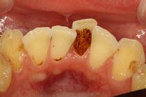 歯の汚れの付着