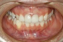 前歯のセラミック