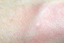 Mückenstich richtig behandeln