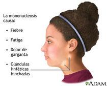 mononucleosis Infecciosa, enfermedad del beso, epstein barr
