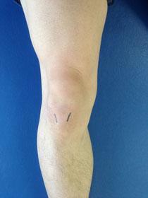右膝の膝蓋腱位置