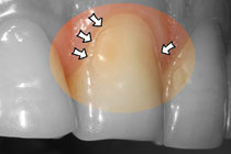 Érosion dentaire © ParoSphère