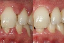La première phase du traitement parodontal - © Copyright ParoSphère