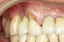 インプラントの歯茎再生