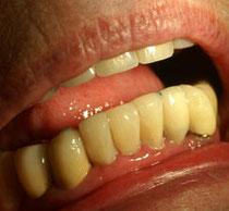 Zahnverschönerung Unterkiefer