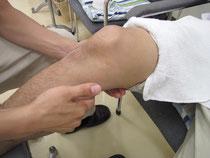 医療マッサージ 患部のマッサージ 運動療法