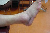 「ねんざ」 右外側靱帯損傷