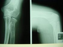 骨折リハビリ スポーツ外傷治療
