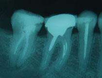 Endodoncias con necesidad de retratamiento