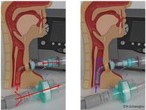La VPM 007 à l'inhalation (à gauche) et à l'expiration (à droite)