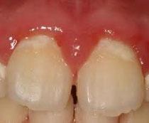 八戸市の歯医者くぼた歯科医院 子どもの治療