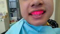 八戸市の歯医者 くぼた歯科医院 マウスガード