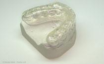 Zahnschiene zur Entspannung der Kaumuskulatur (© proDente e.V.)
