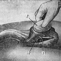 Водянка яичка операция Винкельмана.