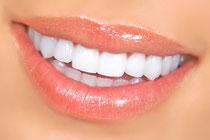 Schöne helle Zähne mit Keramik-Veneers und Bleaching