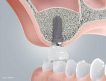 3. ausreichend Raum für ein Implantat