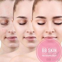 BB Skin Kiel, Microneedling mit Hyaloronserum und Farbpigmenten