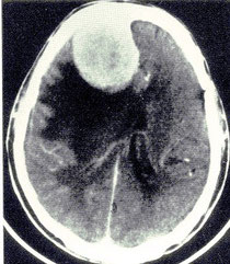脳腫瘍(髄膜腫)