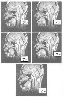 図5 母音発声時のMRI画像