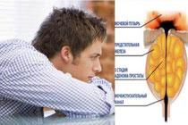 народное средство от простатита