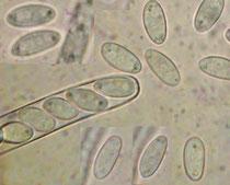Ein Ascus und einige freie Sporen.