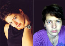 Heike vor der Krankheit und nach einigen Jahren mit ME.