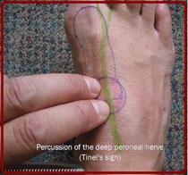 足の甲のしびれ