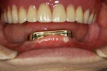 舌の前歯のみにインプラント