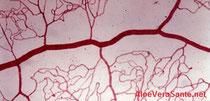 Pourquoi vous devez prendre soin de vos vaisseaux capillaire