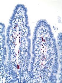 Immune histochemic labelling of recombinant prion protein (marked red) in intestinal villi in small intestine. (Credit: Caroline Åkesson)