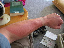 Gegen Sonnenbrand helfen Hausmittel