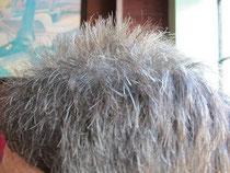 Graue Haare bei jüngeren Menschen sind oft ein Problem