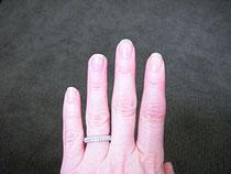 Nicht jeder hat gesunde Fingernägel