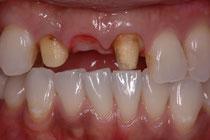 前歯の1本無いケース