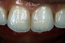 天然の歯の色