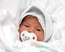 СД у новорожденного